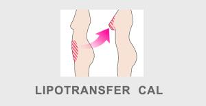 Lipotransfer