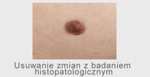 chirurgia zmian skórnych guz podskórny guzek skóry wycinanie znamion znamiona barwnikowe brodawki
