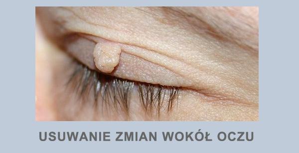 Usuwanie zmian wokół oczu