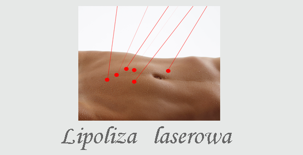 Lipoliza tłuszczowa