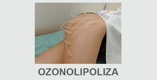Ozonolipoliza