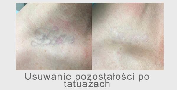 usuwanie pozostałości po tatuażach usuwanie tatuaży