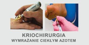 kriochirurgia wymrażanie brodawek zmian skórnych ciekłym azotem