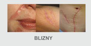 usuwanie blizn chirurgiczne korekty tkanek usuwanie blizn włókniaków tłuszczaków usuwanie zmian z badaniem histopatologicznym