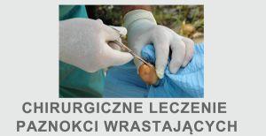 Paznokieć wrastający wrastanie paznokcia plastyka wału paznokciowego