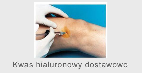 Kwas hialuronowy dostawowo kwas hialuronowy do kolana zastrzyki z kwasu hialuronowego