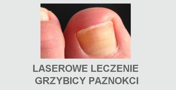 Laserowe leczenie grzybicy paznokci