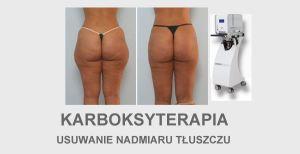 Karboksyterapia tłuszcz