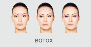 botox toksyna botulinowa
