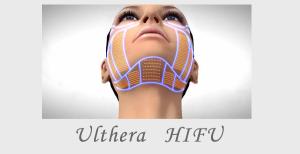 Ulthera HIFU