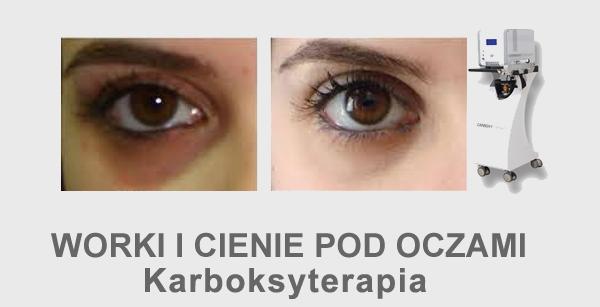 Worki i cienie pod oczami karboksyterapia