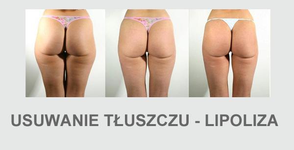 Lipoliza laserowa laserowe usuwanie tłuszczu laser lypolysis liposukcja laserowa