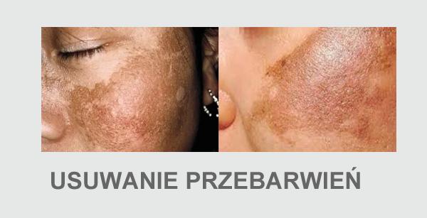 usuwanie przebarwień skórne 27 worki cienie pod oczami celulit rozstępy łysienie wypadanie włosów lipodystrofia karboksyterapia 24 karboksyterapia 24 cena usuwanie rozstępów cena karboksyterapia 24 na rozstępy zmarszczki złogi tłuszczu łysienie wypadanie włosów worki pod oczami cienie pod oczami redukcja tkanki tłuszczowej rozstępy lipodystrofia tłusczaki najskuteczniejsze zabiegi na cellulit 26 karboksyterapia 24 rozstępy usuwanie zmarszczek trzebnica laserowe usuwanie rozstępów cena usuwanie rozstępów wrocław zabiegi na cellulit 26 trzebnica zabieg karboksyterapii dwutlenek węgla leczenie łysienia skuteczna walka z cellulit 26em leczenie rozstępów laser co2 wrocław zabiegi kosmetyczne na rozstępy karboksyterapia 24 urządzenie najskuteczniejsze na cellulit 26 karboksyterapia 24 opinie skuteczne usuwanie rozstępów co pomaga na żylaki usuwanie rozstępów po ciąży masaż na rozstępy lakier do włosów na cellulit 26 szara łuszczyca laser na wypadanie włosów cellulit 26 zdjęcia usuwanie rozstępów laserem cena bąbelkowe walentynki karboksyterapia 24 wrocław zabiegi na nogi revitalash kraków gdzie kupić od czego robią się rozstępy laserowe usuwanie rozstępów trzebnica rozstępy usuwanie laserowe cena usuwanie cellulit 26u trzebnica lipoliza szczecin usowanie rozstepow rozstępy zabiegi kosmetyczne usuwanie rozstępów usuwanie przebarwień trzebnica smocza krew zastosowanie usuwanie starych rozstępów fazy cellulit 26u carboxyterapia usuwanie blizn potrądzikowych trzebnica rozstępy usuwanie laserowe właściwości dwutlenku węgla metody usuwania rozstępów stare rozstępy usuwanie usuwanie rozstępów na piersiach rozstępy na piersiach usuwanie urządzenie do rozbijania tkanki tłuszczowej karboksyterapia 24 rewitalizacja skóry łuszczyca wokół oczu likwidowanie rozstępów łysienie na nogach dwutlenek węgla właściwości karboksyterapia 24 efekty czy dwutlenek węgla jest szkodliwy rozbijanie tłuszczu pielęgnacja blizny po cesarce co2 we krwi jak pozbyć się cellulit 26u zapytaj ostrzykiwanie br