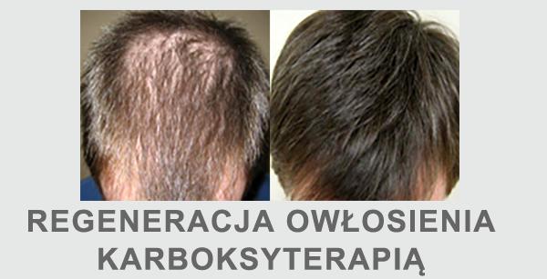 Karboksyterapia skóry głowy