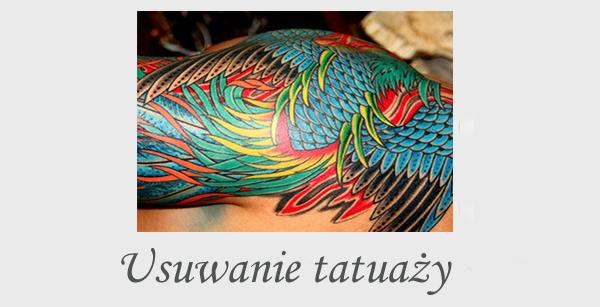 Usuwanie tatuaży tatuaż kolorowy niechciany tatuaż gdzie usunąć tatuaż laser pikosekundowy